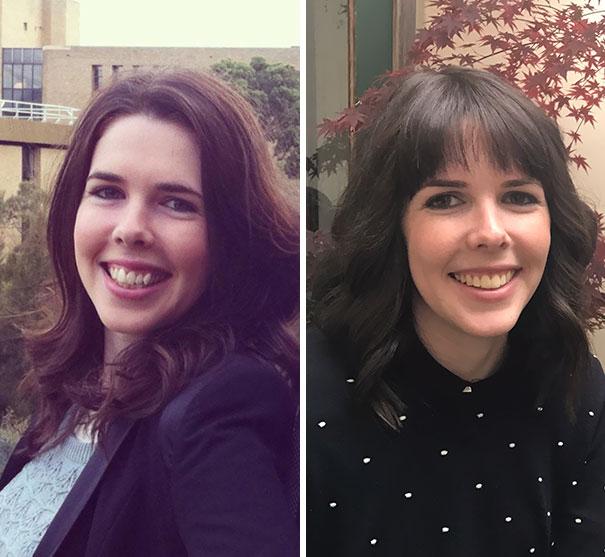 Transformations incroyables avant et après des personnes qui portaient des appareils dentaires