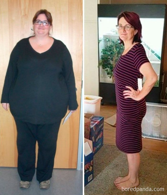 Des photos avant et après une perte de poids qui sont..