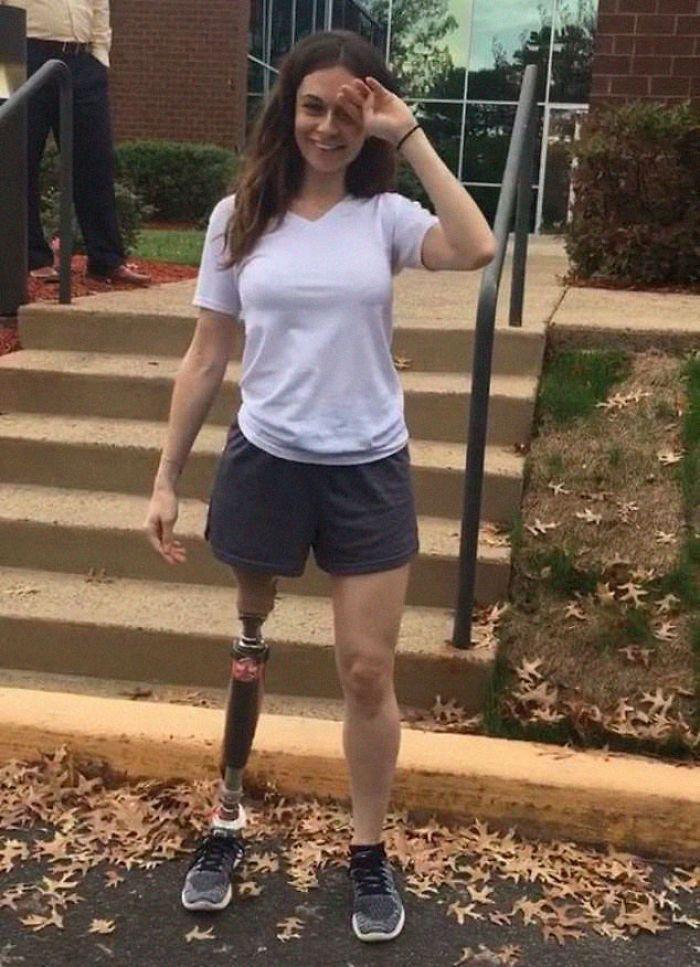 Quand cette fille s'est fait amputer la jambe à 11 ans, personne ne s'attendait à ce qu'elle devienne mannequin 20 ans plus tard.