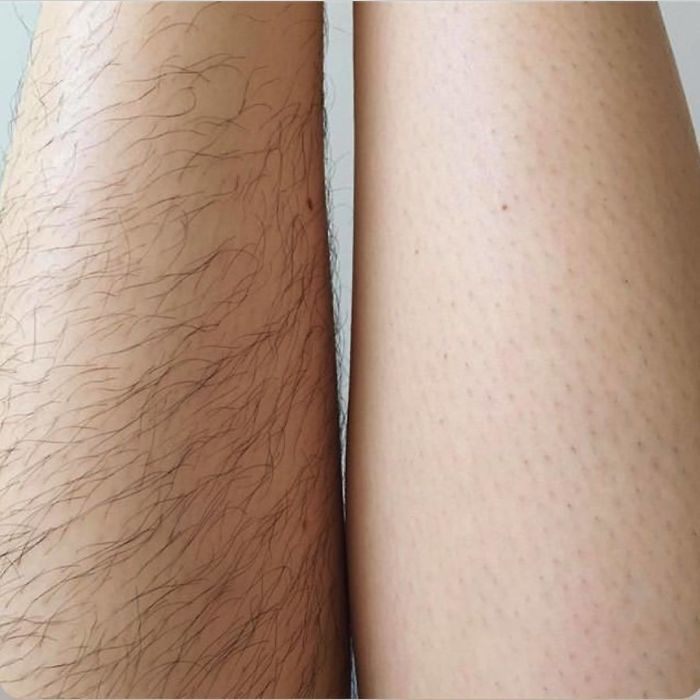 50 Women Are Choosing Not To Shave For 'Januhairy', Share Pics Of Their Progress