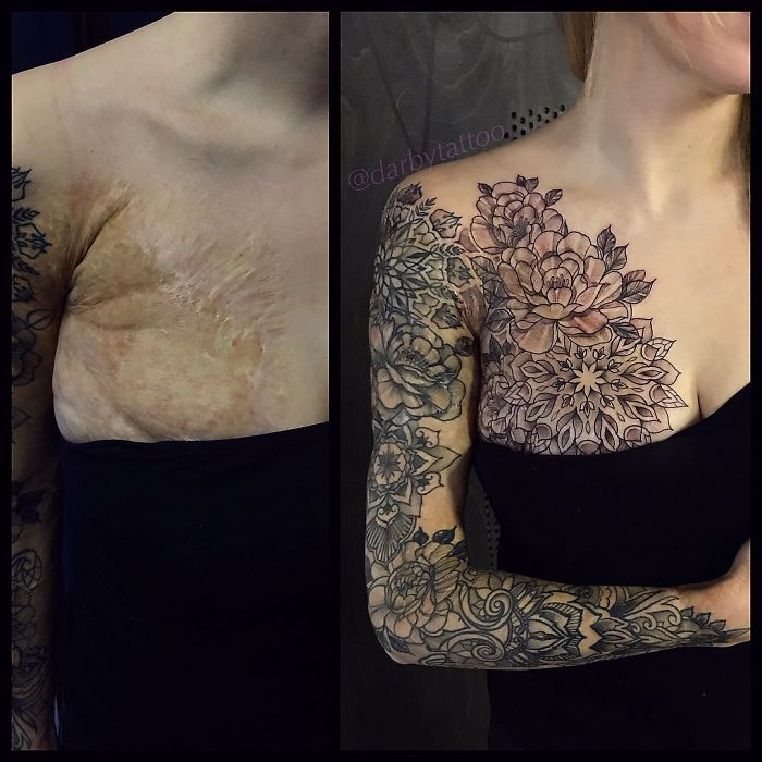 50 Times People Asked To Cover Up Their Scars And Birthmarks, And Tattoo Artists Nailed It