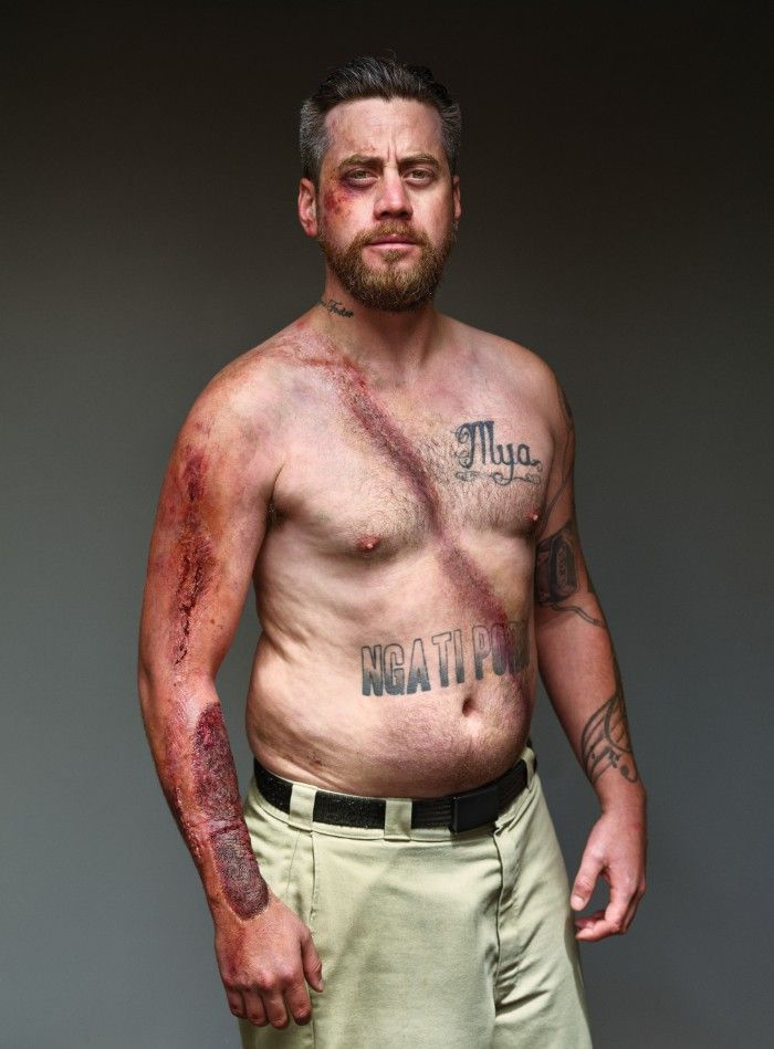 10 Car Crash Survivors Pose Proudly For A Chilling Photo Project To Raise Awareness About Seatbelt Safety