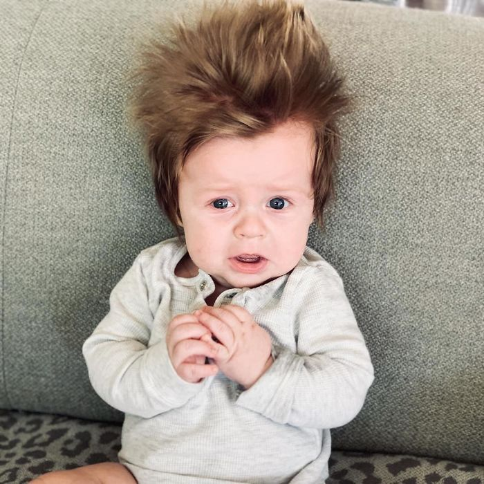 A Four-Month-Old Baby From Australia Has A Head Full Of Lush Hair That Causes A Stir Wherever He Goes