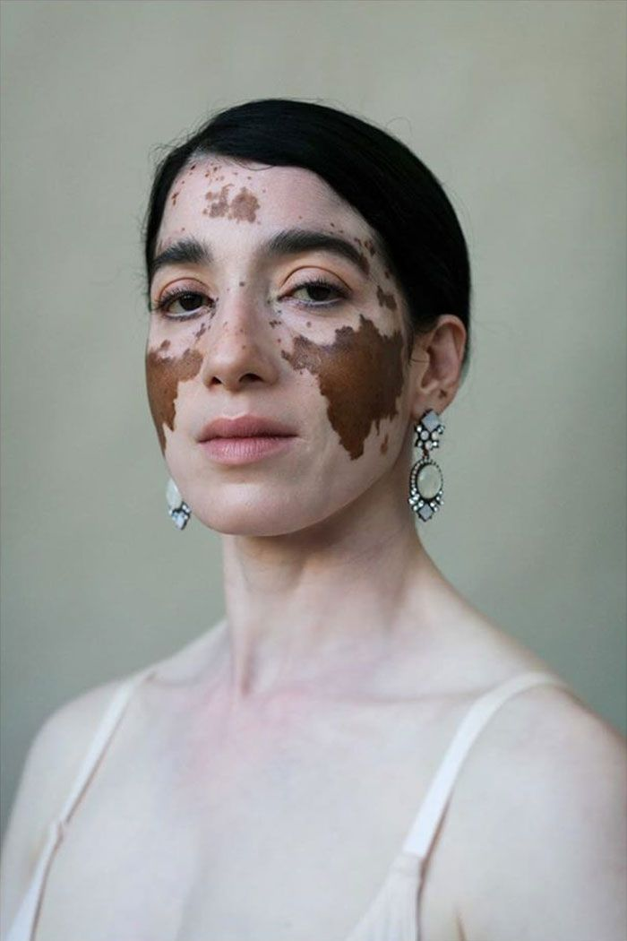 35 Beautiful Women With Vitiligo Shot By A Photographer Who Has The Same Condition