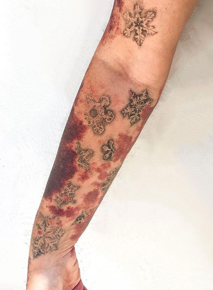 50 Times People Asked Tattoo Artists To Cover Up Their Scars And Birthmarks And Couldn't Be Happier With The Result